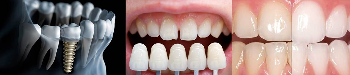 Top Dental Procedures in Costa Rica